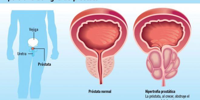 التهاب پروستات عوامل ابتلا و راههای درمان