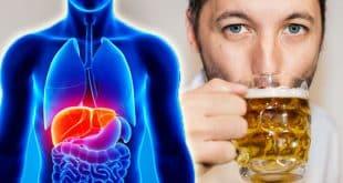 افزایش بیماریهای کبدی در انگلستان در اثر مصرف مشروبات الکلی