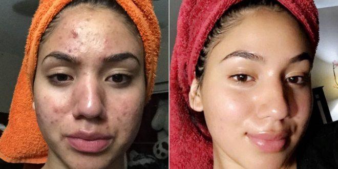 درمان جوشهای پوستی در طب سنتی