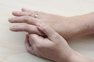 خشکی پوست و راههای درمان آن