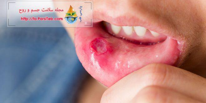 درمان آفت دهان با ۱۵ روش خانگی و گیاهی