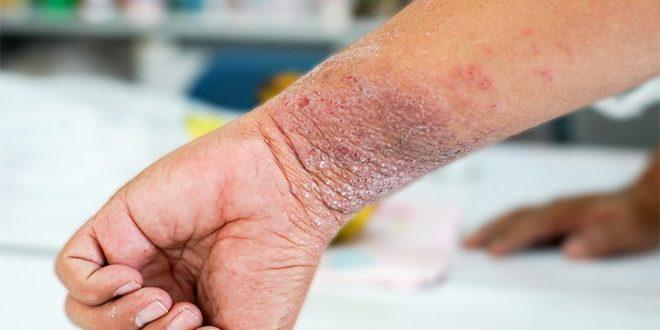 درمان اگزما با گیاهان دارویی و طب سنتی