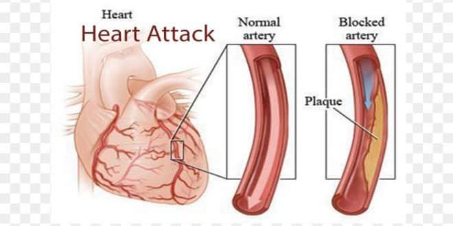 درمان تنگی عروق قلب