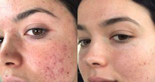 درمان جوش و دمل صورت با ماسکهای گیاهی