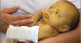 درمان زردی یا یرقان در طب سنتی