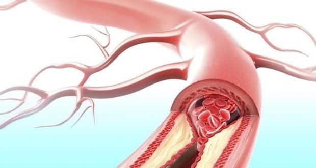 گرفتگی عروق قلب تا 70 درصد بدون علامت است