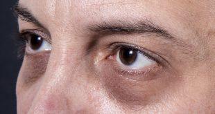درمان گودی تیره چشم