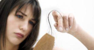 ریزش موی خانم ها