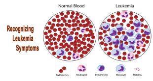 سرطان خون ( لوکمی )
