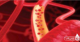 غلظت خون: آنچه در ارتباط با غلظت خون باید بدانید