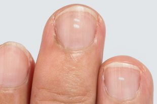 درمان لکههای سفید روی ناخن