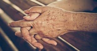 لکه های کبدی چیست و راههای درمان آن