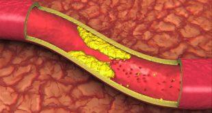 نسخه گیاهی برای درمان و کاهش چربی خون