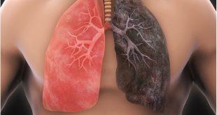 نکته هایی که باید درباره سرطان ریه بدانید