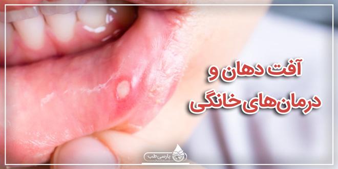 آفت دهان و درمانهای خانگی