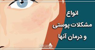 انواع مشکلات پوستی و درمان آنها