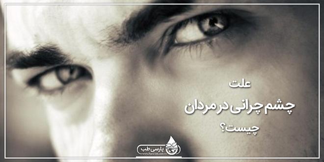 علت چشم چرانی در مردان