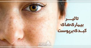 تاثیر بیماری های کبدی بر پوست
