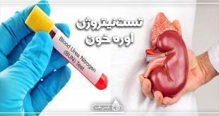تست نیتروژن اوره خون (BUN)