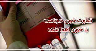 تفاوت خون حجامت با خون اهدا شده