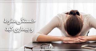 کبد و خستگی مفرط