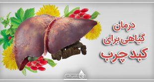 درمان گیاهی برای کبد چرب