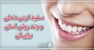 سفید کردن دندان و چند روش آسان برای آن