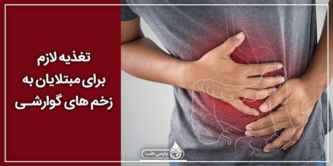 تغذیه لازم برای مبتلایان به زخم های گوارشی