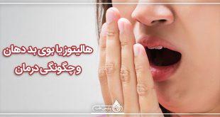 هالیتوز یا بوی بد دهان و چگونگی درمان