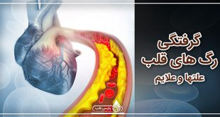 گرفتگی رگ های قلب، علتها و علایم