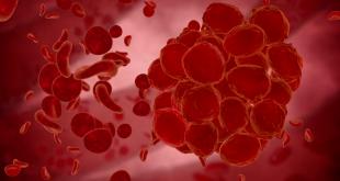 نقش پلاکت خون در بدن چیست و مقدار نرمال پلاکت خون