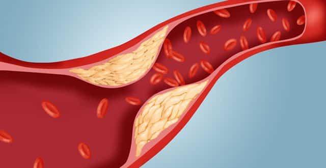 پیشگیری از گرفتگی عروق قلب