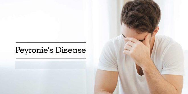 بیماری پیرونی و راههای درمان