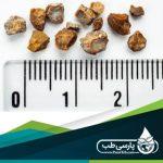 درمان سنگ کلیه در طب سنتی