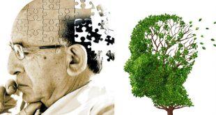 Alzheimerآلزایمر و تغذیه