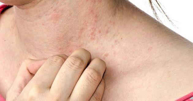 الرژی پوستی