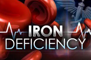 کم خونی ناشی از فقر آهن