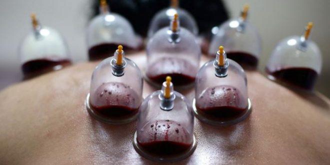 توجیه علمی حجامت تفاوت خون حجامت با خون اهدا شده