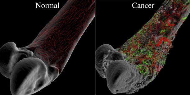 سرطان استخوان