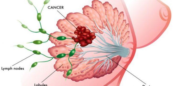 شایع ترین سرطان در زنان ایران سرطان های کشنده در زنان انواع سرطان زنان علائم سرطان در زنان پاورپوینت شایع ترین سرطان در زنان شایع ترین سرطان در زنان چیست