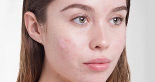 علت جوش پوست و صورت