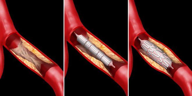 استنت آنژیوگرافی عروق قلب