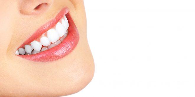 سفید کردن دندان 21