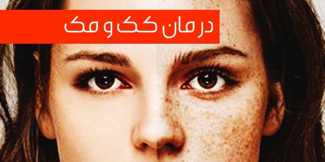 15 راه حل معجزه آسا برای درمان کک و مک