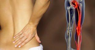 راههای درمان سیاتیک