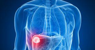 سرطان کبد سیروز کیدی