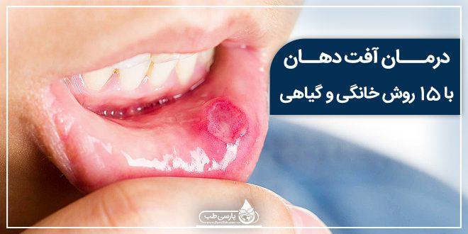 درمان آفت دهان با 15 روش خانگی و گیاهی