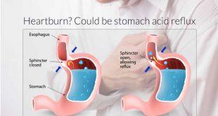 درمان رفلکس اسید معده