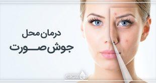 درمان محل جوش صورت