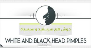 درمان جوش های سر سفید و سر سیاه